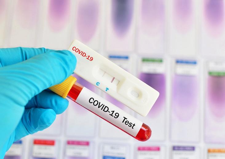 Как долго тест на коронавирус остается положительным после выздоровления?